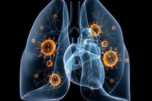 podozrenie-na-tuberkulez